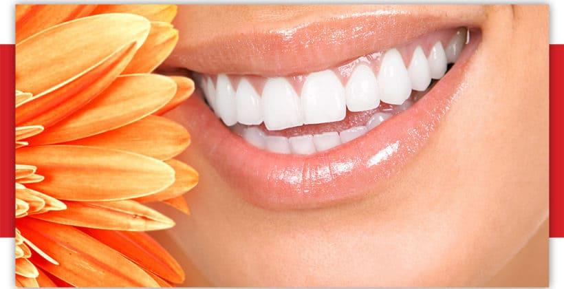 4 lucruri esentiale despre albirea dentara cu laser
