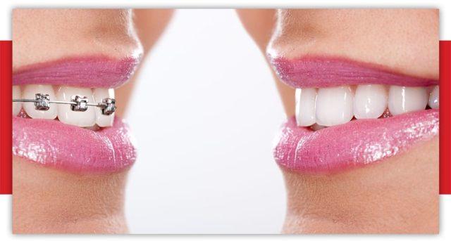aparat dentar metalic - ortodontie bucuresti