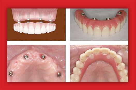 implanturi dentare All-on-4/6