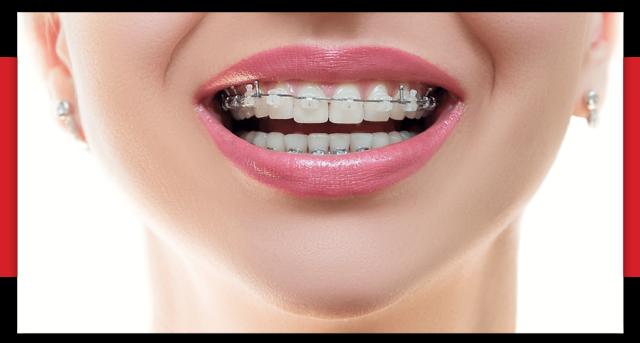 aparat dentar safir - ortodontie bucuresti