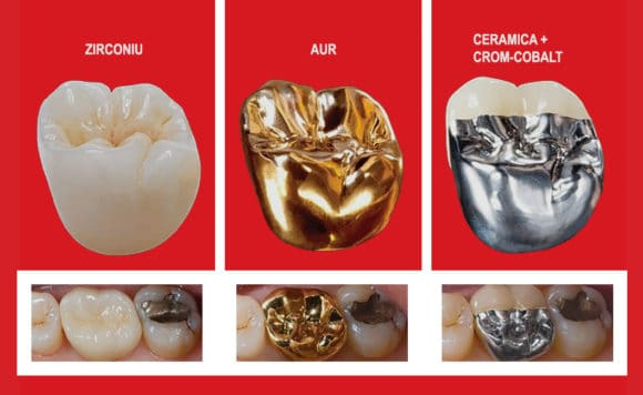 coroane dentare ceramica, metal