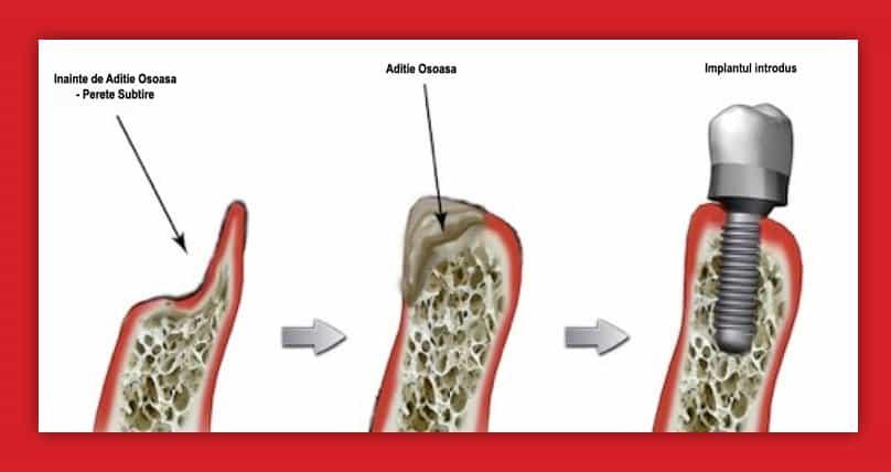 Bio-Oss/ Bio-Gide adjuvant in tratamentul parodontozei