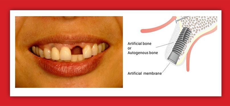 Implanturi dentare cu incarcare imediata