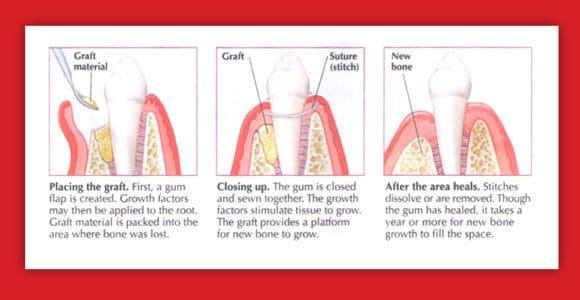 Implanturi +/- augmentare osoasa