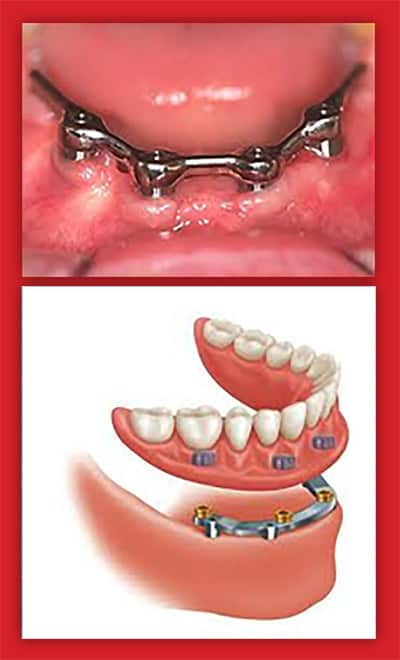 implanturi dentare intarziate
