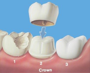 coroana-dentara