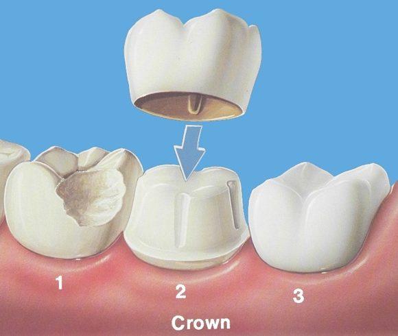 Tipuri de Coroane Dentare